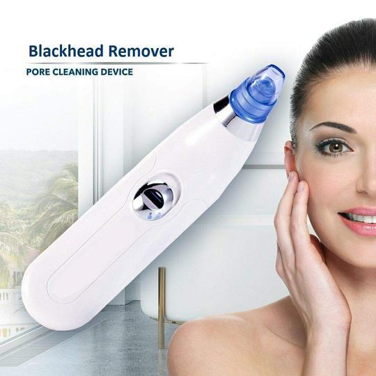 Blackhead Remover and Whitehead Remover